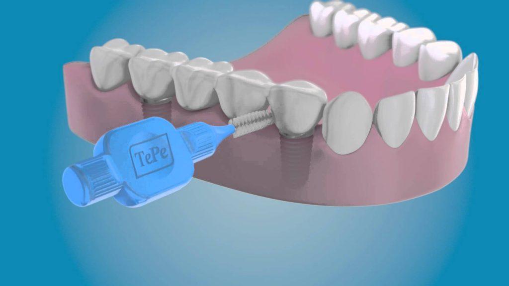 como limpiar implantes dentales